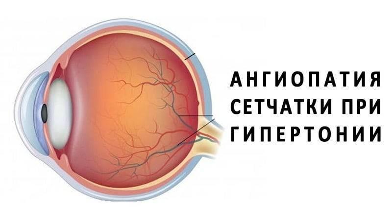 Ангиопатия сетчатки глаза у ребенка: причины заболевания, симптоматика, диагностика и лечение