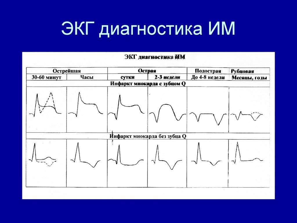 Экг ребенку — расшифровка, норма в таблице, нарушения работы сердца на кардиограмме - wikidochelp.ru