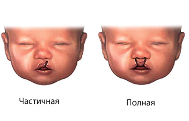Заячья губа и волчья пасть у ребенка. волчья пасть у ребенка - ваш зубной