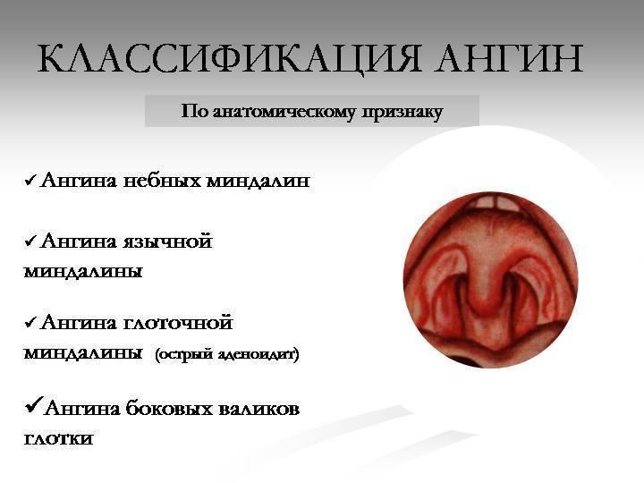 Лакунарная ангина у детей: фото горла, симптомы и лечение антибиотиками