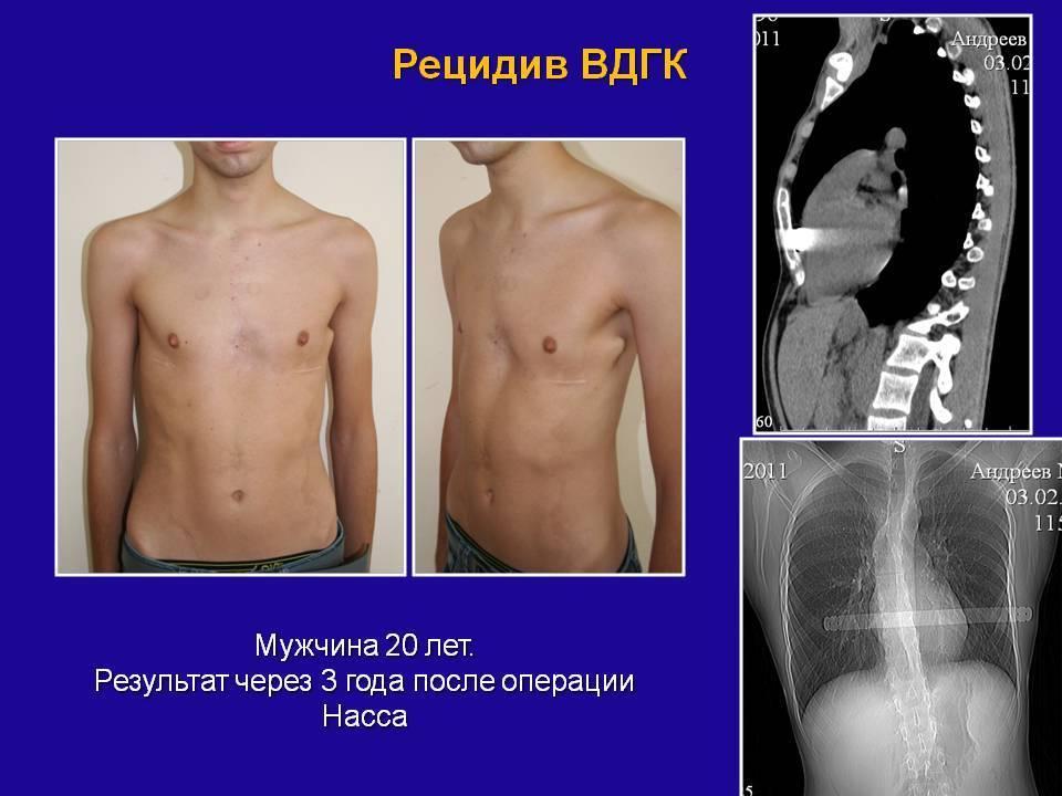 Воронкообразная грудная клетка:  причины и тактика лечения