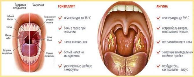 Белый налет в горле у детей и взрослых: причины и лечение