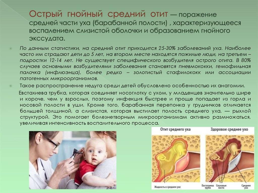 Катаральный отит у детей симптомы и лечение