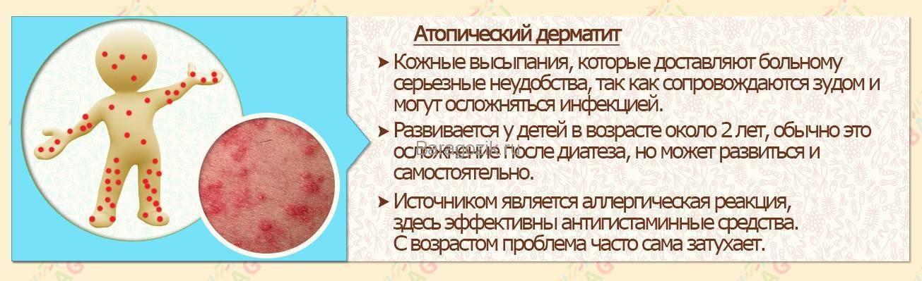 Дерматит у грудничка (новорожденного): симптомы и лечение