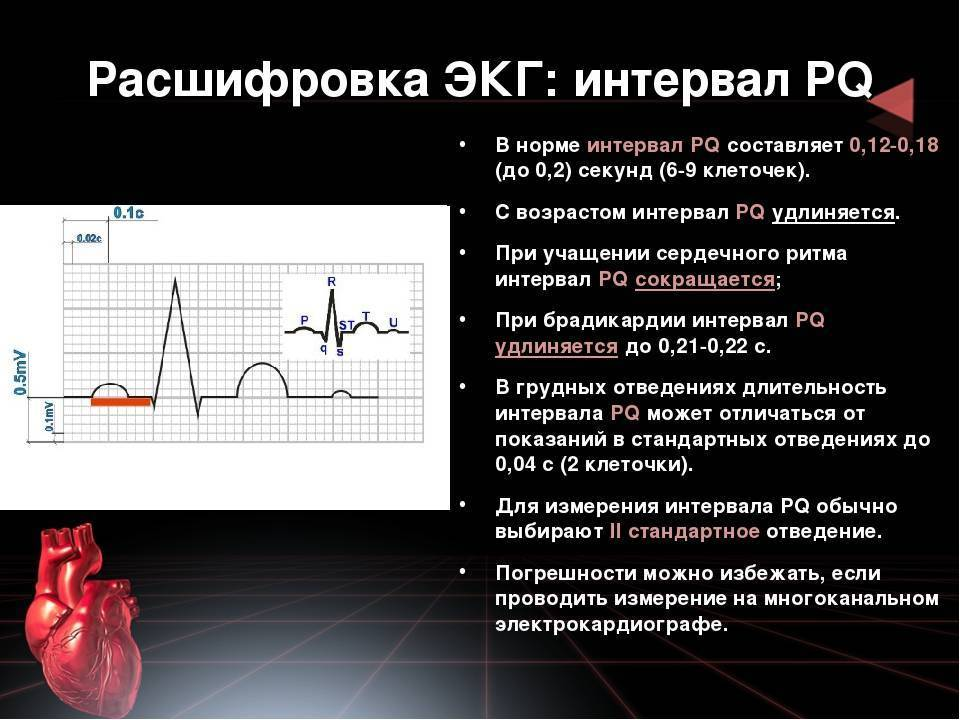 Синусовый ритм сердцана экг - что это значит в диагностике кардиопатологий