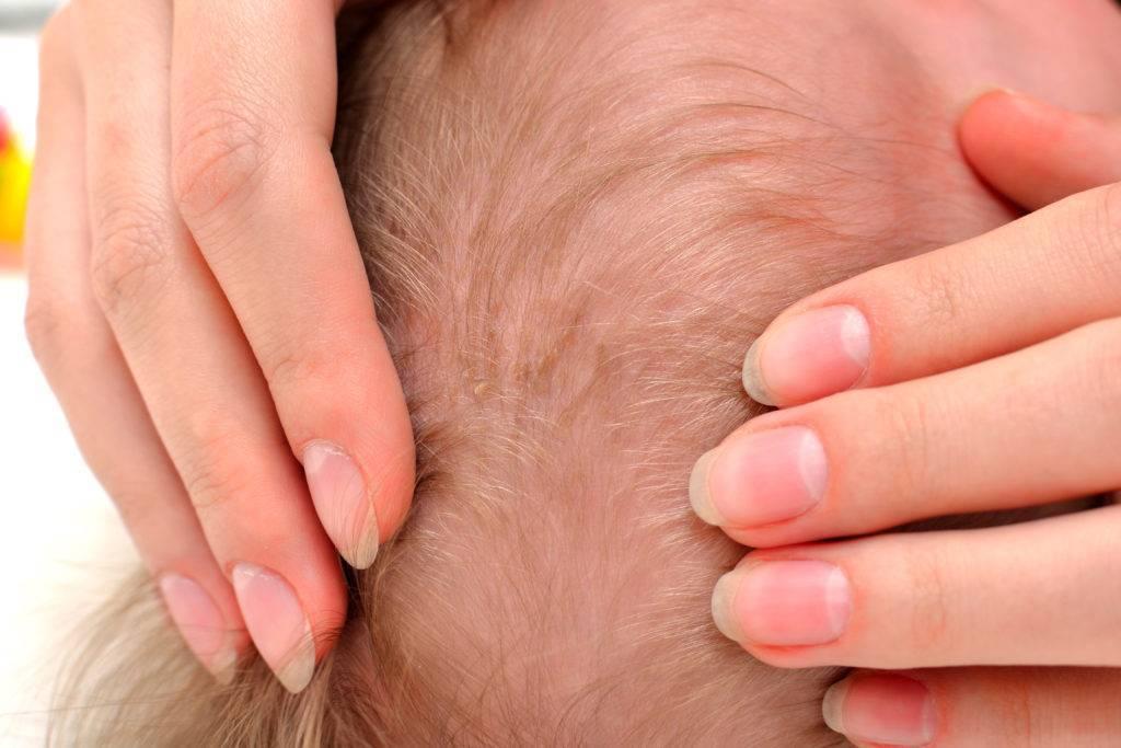 Почему у ребенка 5 лет шелушится кожа на голове