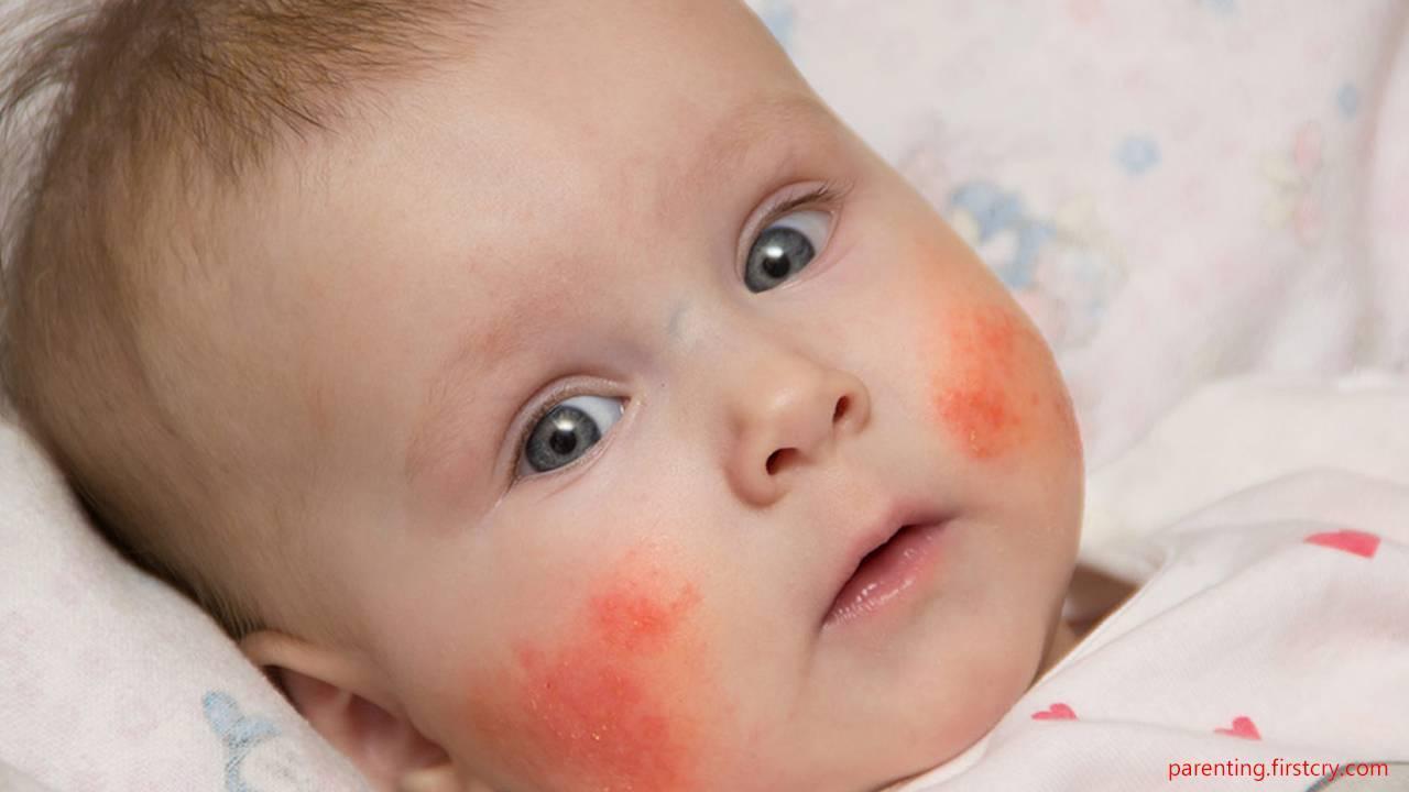 Симптомы и способы лечения аллергического дерматита у детей