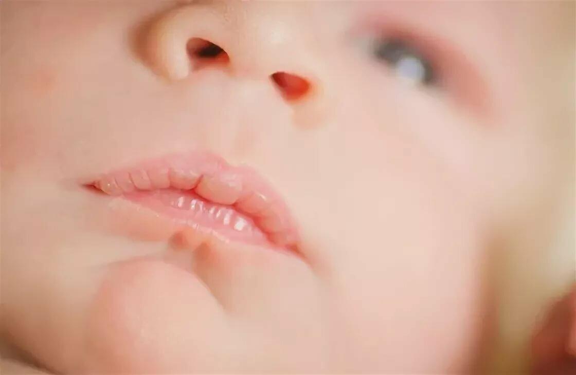 Пузырек на губе у новорожденного - советы врачей