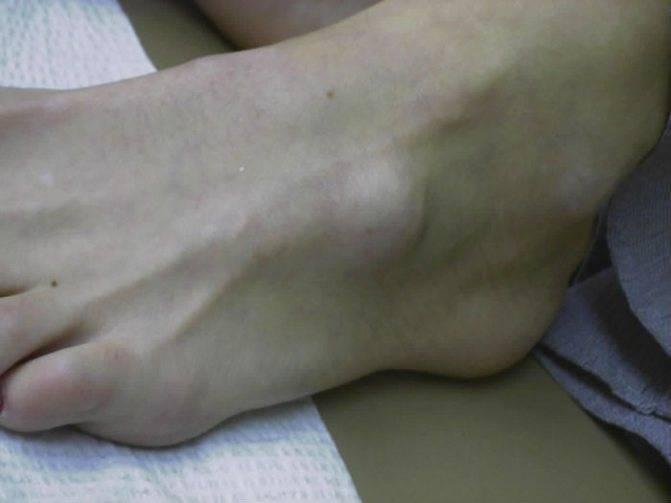 На подошве ноги есть уплотнения и больно наступать: причины образования на ступне, лечение шишек