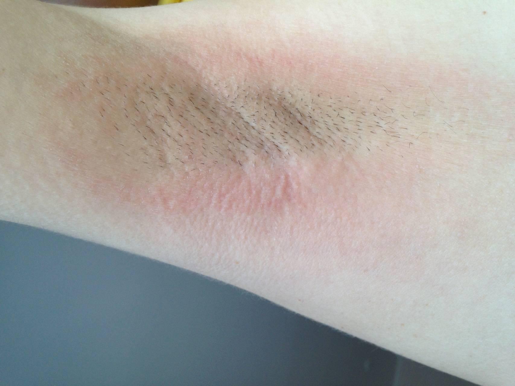 Причины шелушения кожи на голове ребенка