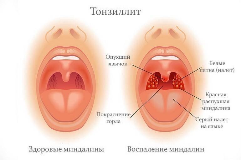 У ребенка постоянно красное рыхлое горло – что это значит и чем лечить? - врач 24/7