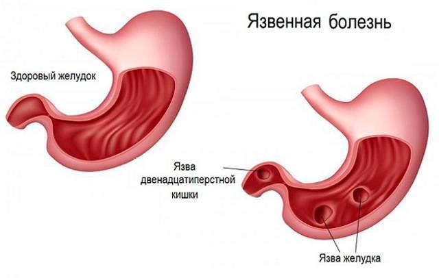 Язвенная болезнь желудка и, двенадцатиперстной кишки: симптомы, лечение и профилактика