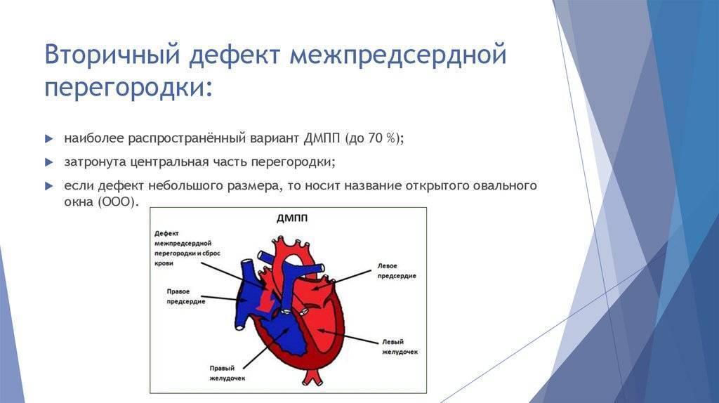 Дефект межпредсердной перегородки: вторичный врожденный порок сердца у новорожденных детей и взрослых — заболевания сердца