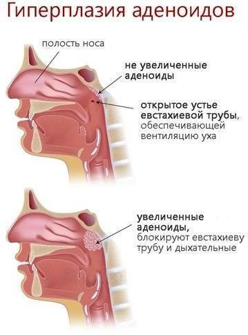 Аденоидит, комплексное лечение аденоидита у взрослых и детей