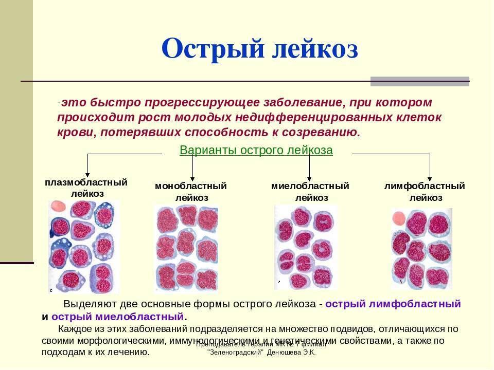 Особенности протекания и лечения острого лимфобластного лейкоза у детей