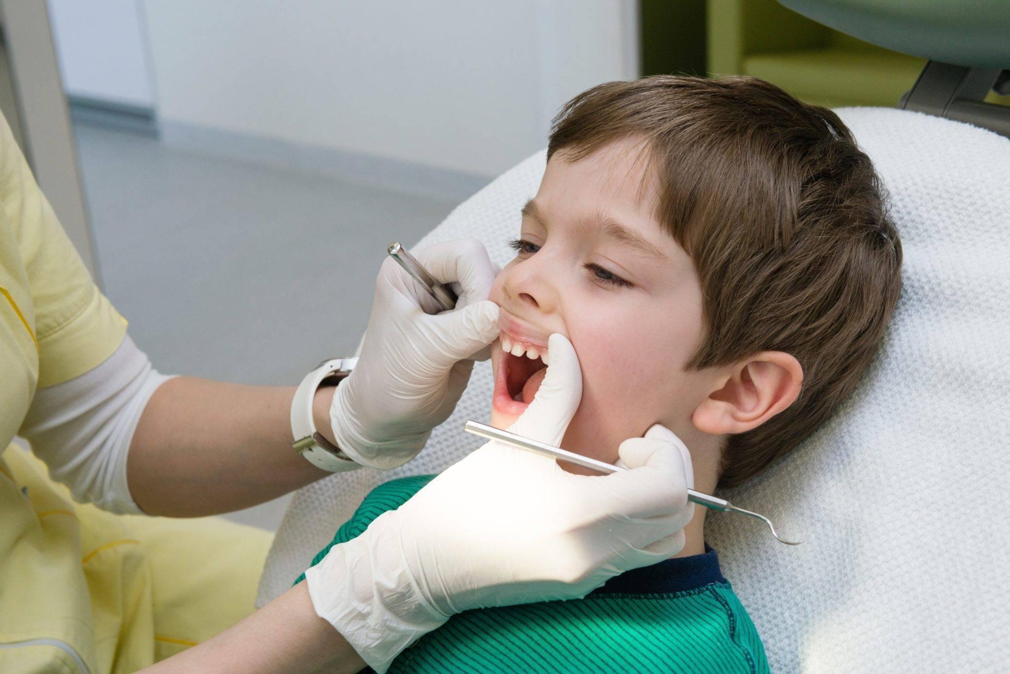Особенности лечения кариеса у детей: подходы и методы