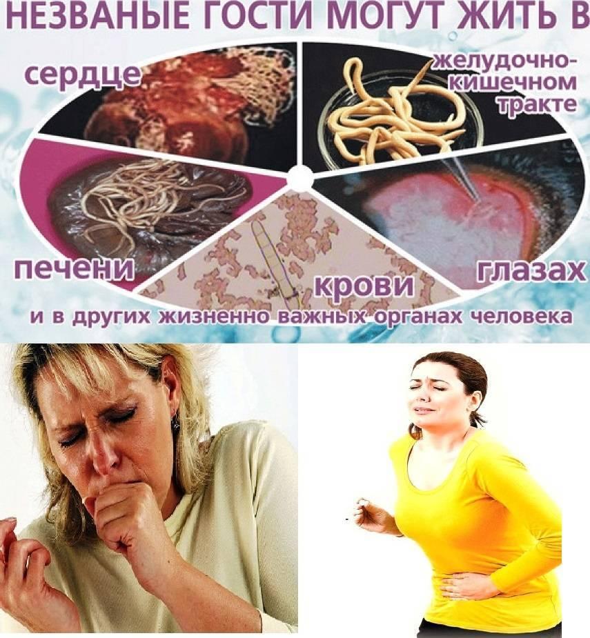 Острицы при беременности: симптомы и лечение энтеробиоза