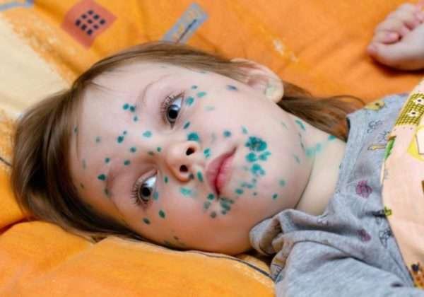 Как отмыть фукорцин с кожи после ветрянки - чем смыть с лица