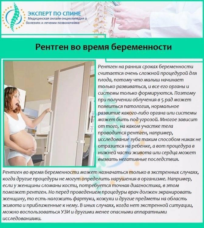 Флюорография при планировании беременности, вред от флюорографии после зачатия, как часто можно делать флюорографию?