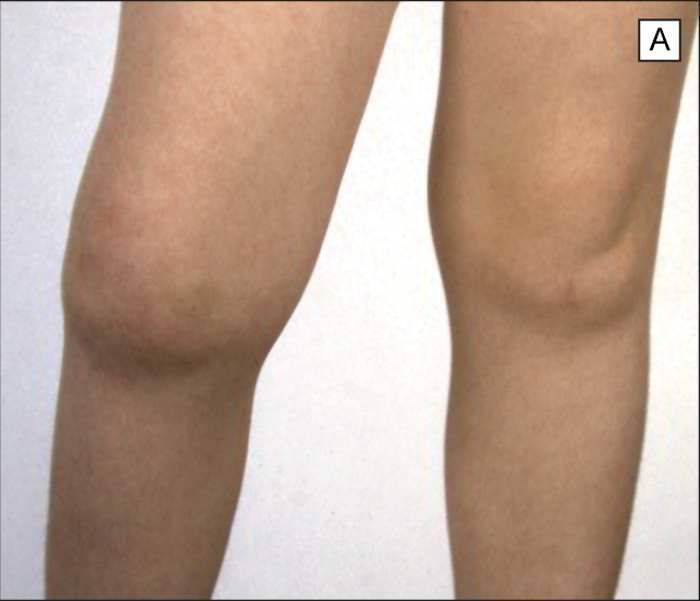 Реактивный артрит у детей: симптомы и лечение коленного сустава у ребенка - твой суставчик