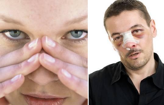 Если ребенок ударился носом будет ли от ушиба нос припухшим - ушиб-лечение