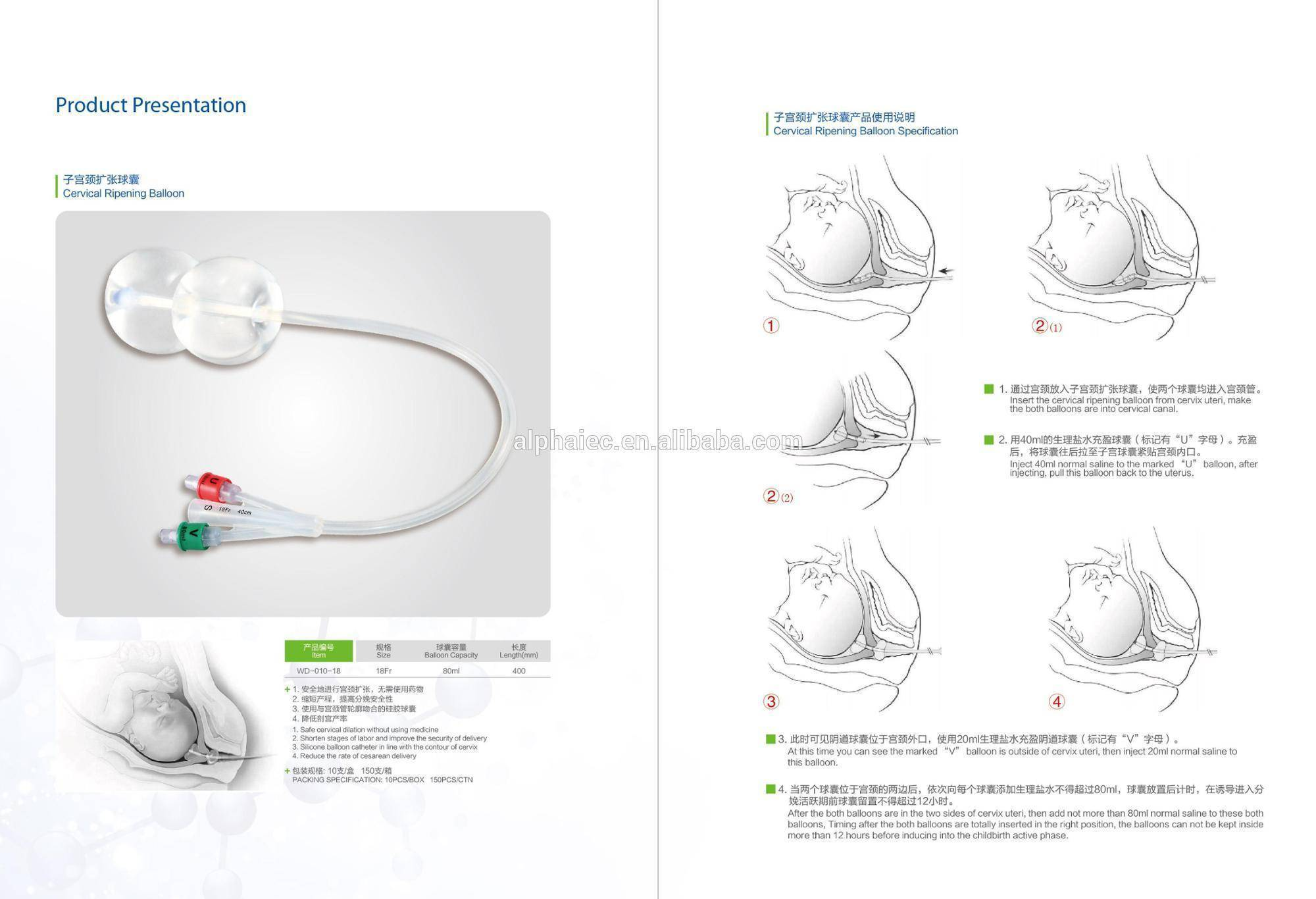 Катетер фолея для раскрытия шейки матки через сколько начнутся роды