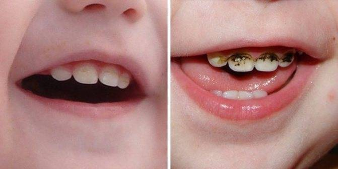 Серебрение зубов у детей: особенности процедуры и отзывы. современная щадящая методика профилактики кариеса