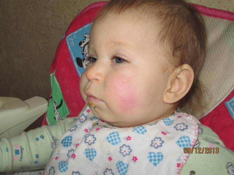Почему может болеть щека внутри у ребёнка