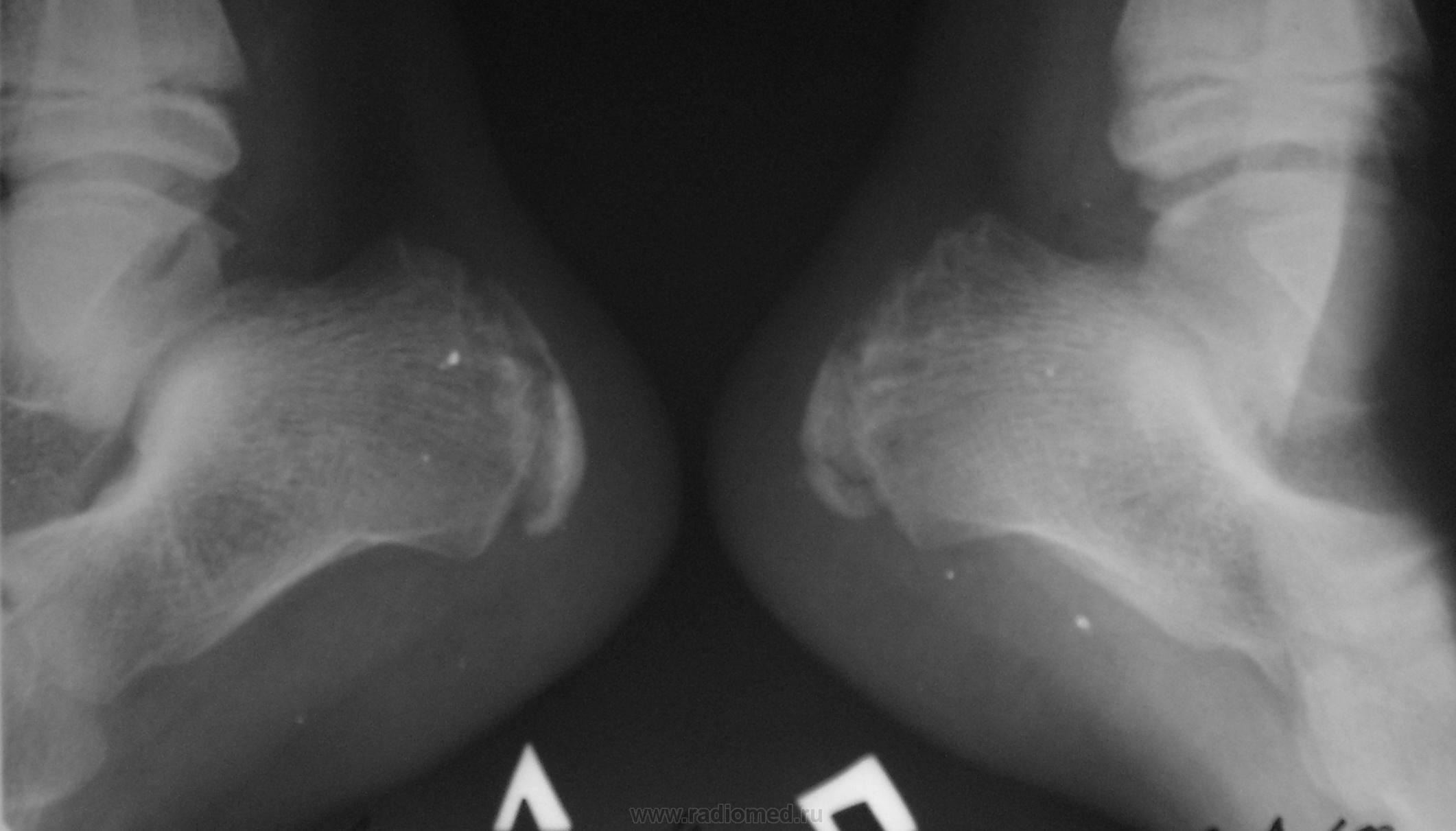 Болезнь шинца у детей – что это такое, и можно ли избавиться от недуга?