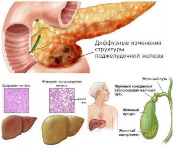 У ребенка увеличена поджелудочная железа причины и лечение диета