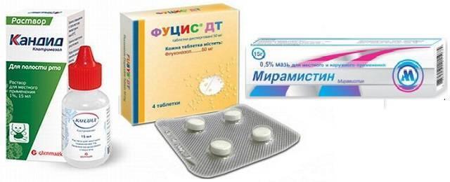 Грибковый (кандидозный) тип стоматита у взрослых: симптомы кандидоза и лечение молочницы