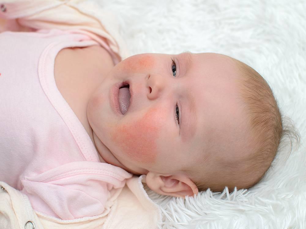 Шелушится кожа у новорожденного на голове, лице и теле - почему появляется сухость и чем лечить