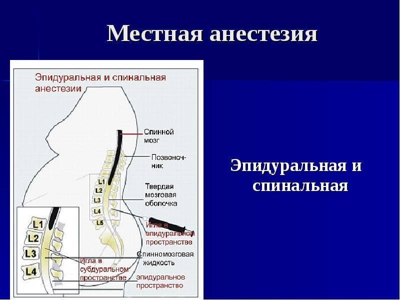 Эпидуральная анестезия или спинальная что лучше. различие эпидуральной и спинальной анестезии
