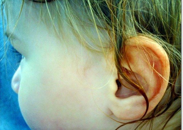 В ухо попала вода ребенку - west-stomatolog.ru