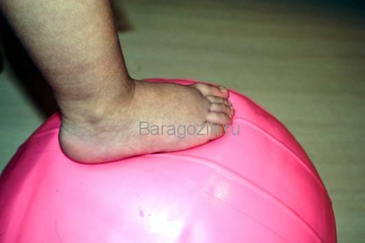 Ребенок ходит на носочках причины комаровский - всё о грудничках