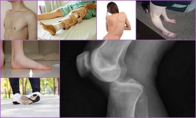 Дисплазия соединительной ткани (соединительнотканная дисплазия) – симптомы, лечение у детей и взрослых