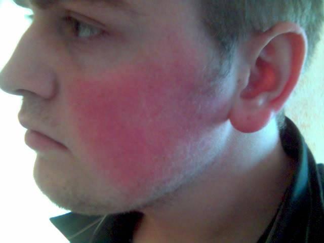 Виды аллергии на коже, какие бывают высыпания на фото