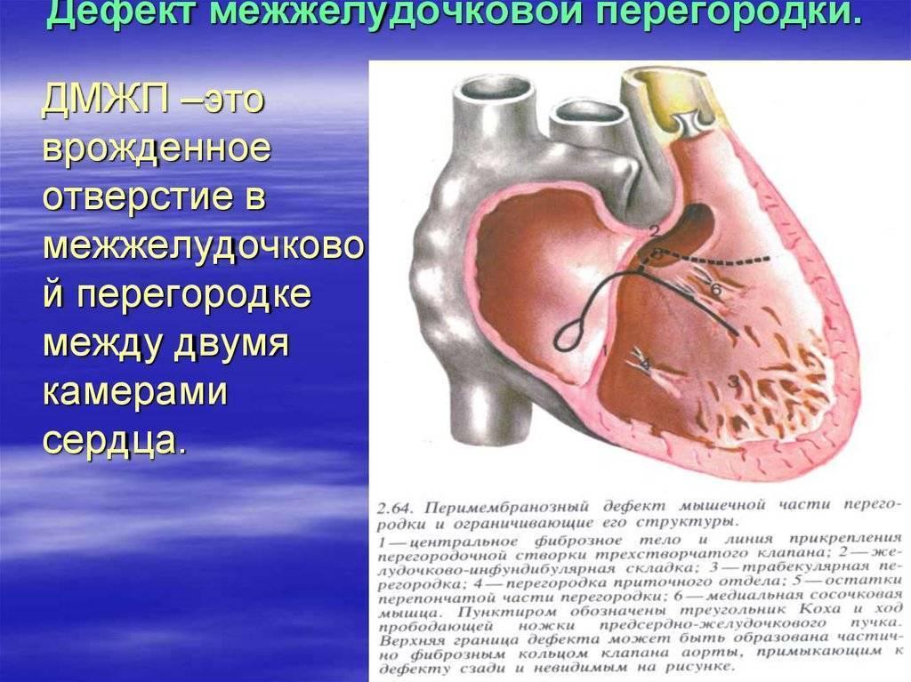Дмжп мышечный вероятность закрытия. у новорожденного мышечный дефект межжелудочковой перегородки в сердце: каковы последствия и лечение дмжп? используемые лекарственные препараты