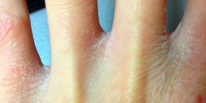 Чешется кожа ладоней: возможные причины зуда и шелушения рук, медикаментозные и народные методы лечения