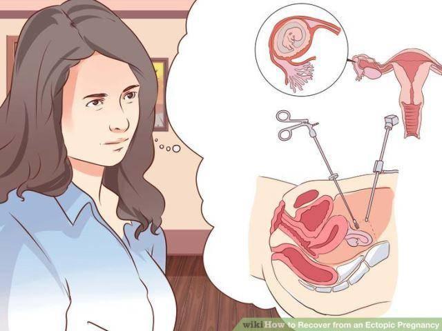 Как проходят искусственные роды