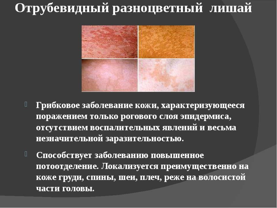Отрубевидный лишай у ребенка (разноцветный): фото, симптомы и лечение