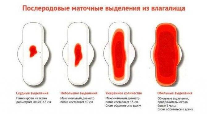 Характер выделений при менструации