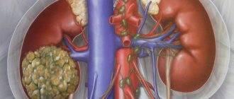 Гипоплазия почки: причины, признаки и особенности лечения