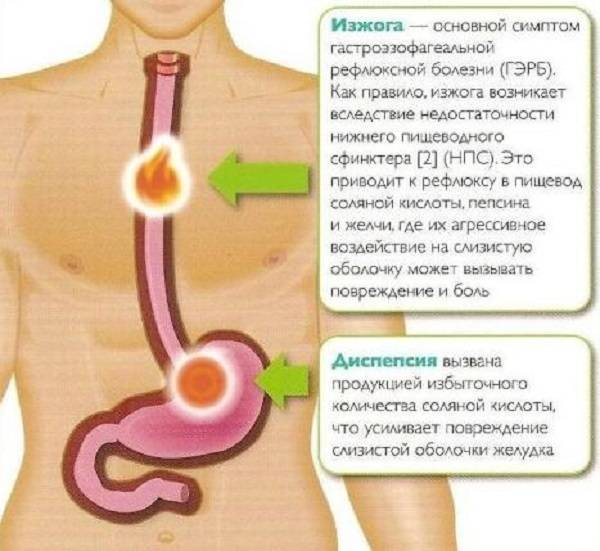Рефлюкс гастрит симптомы и лечение диета у детей