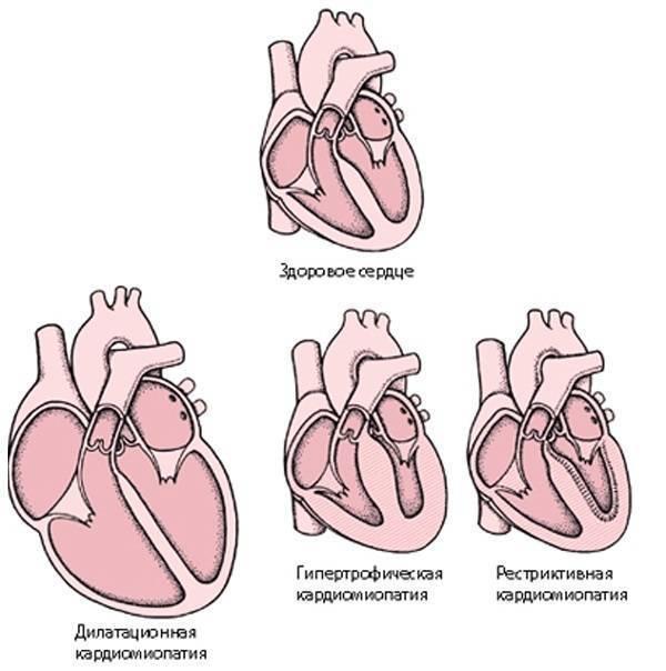 Что такое кардиопатия и кардиомиопатия у детей: причины, симптомы и лечение