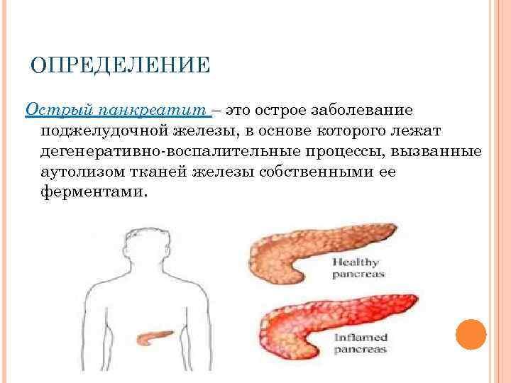 Реактивный панкреатит у ребенка