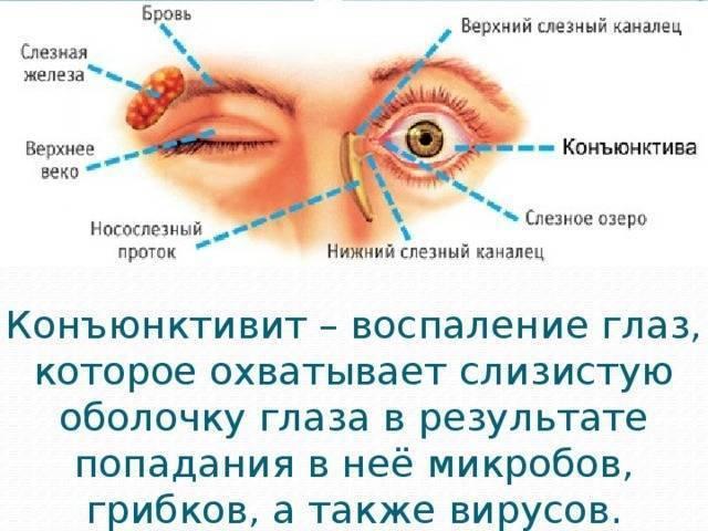 Гнойные и желтые выделения из глаз у ребенка: чем промывать