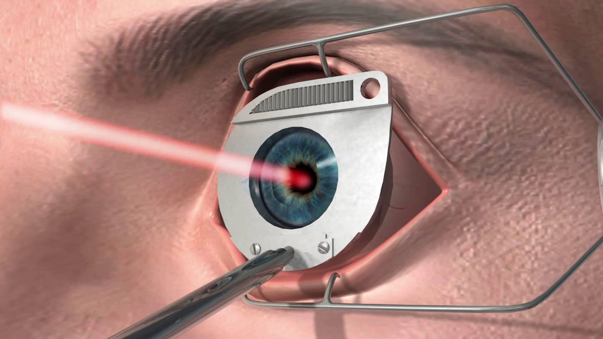 Склеропластика глаз у детей — что это такое, какие есть «за» и «против» для операции?