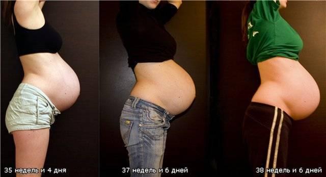 Почему перед родами опускается живот? все, что вы хотели бы знать