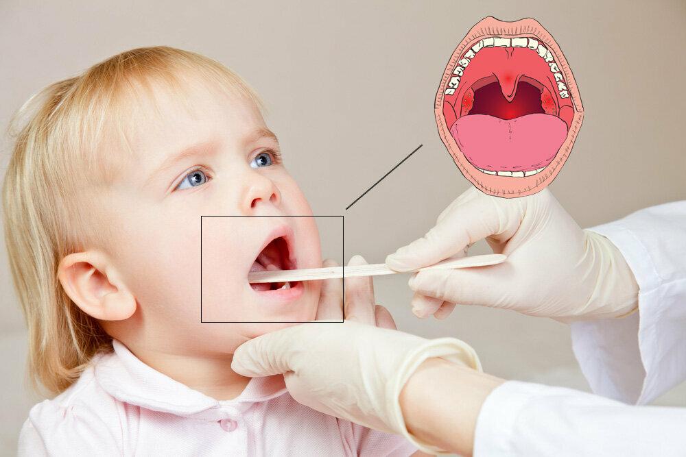Горловой кашель у ребенка: как его лечить - вашврач